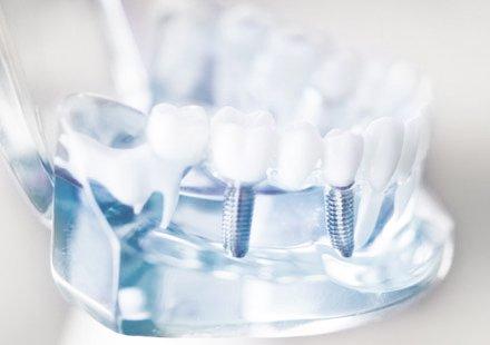 Zahnarztpraxis Katrin Lang - Ästhetische Zahnmedizin in Regensburg - Vollkeramik Systeme