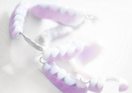 Zahnarztpraxis Katrin Lang - Ästhetische Zahnmedizin in Regensburg - Abnehmbarer Zahnersatz