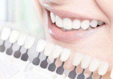 Zahnarztpraxis Katrin Lang - in Regensburg - Ästhetische Zahnmedizin - Bleaching